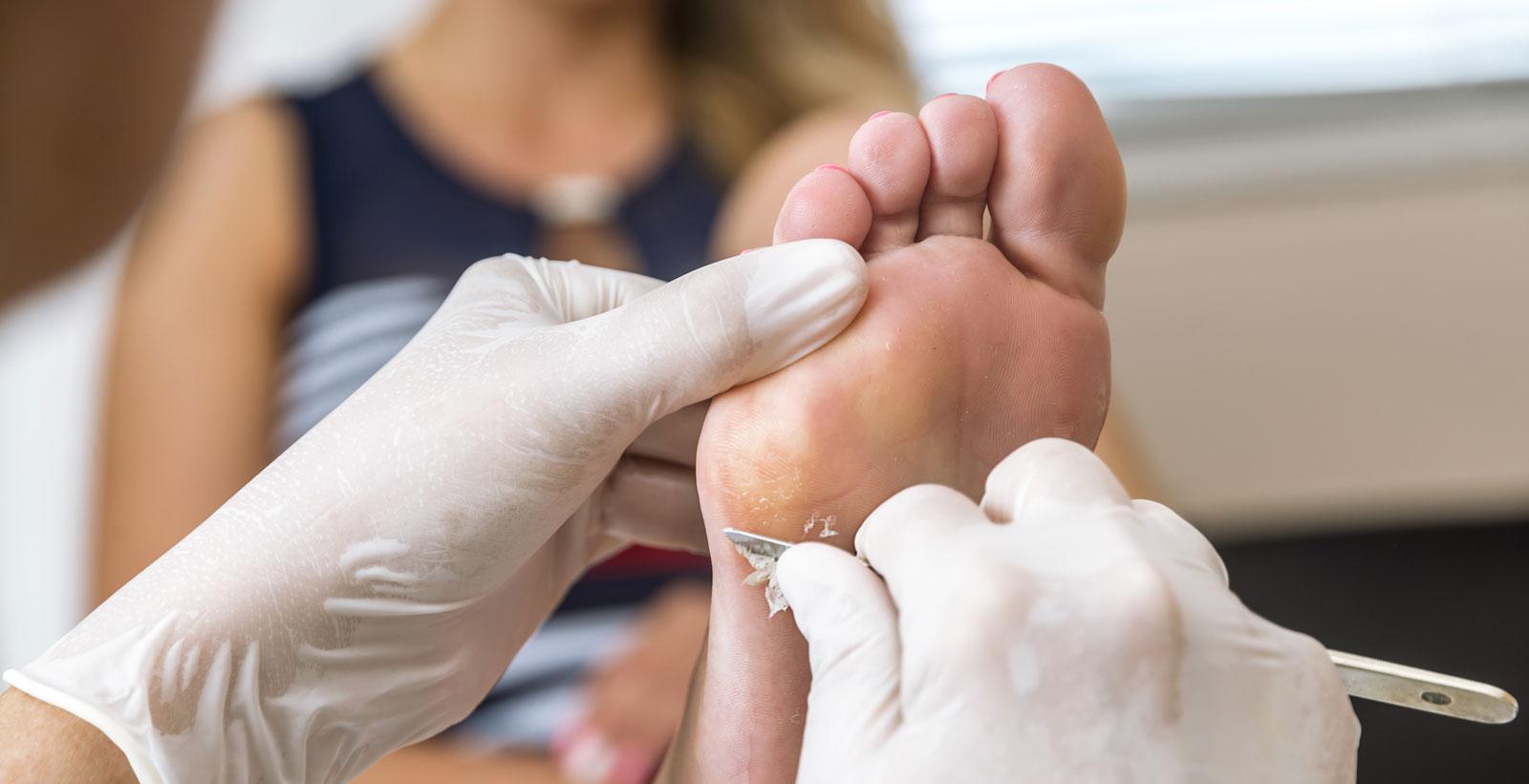 jalkahoito kovettumien hoitaminen